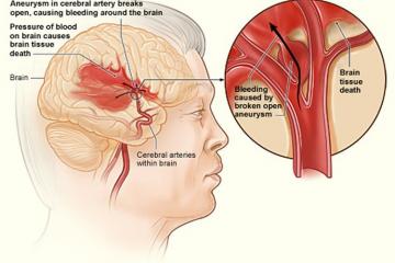 Genes Link Stroke & Dementia